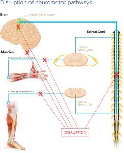 graphic_disruption-of-neuromotor-pathways_rev2